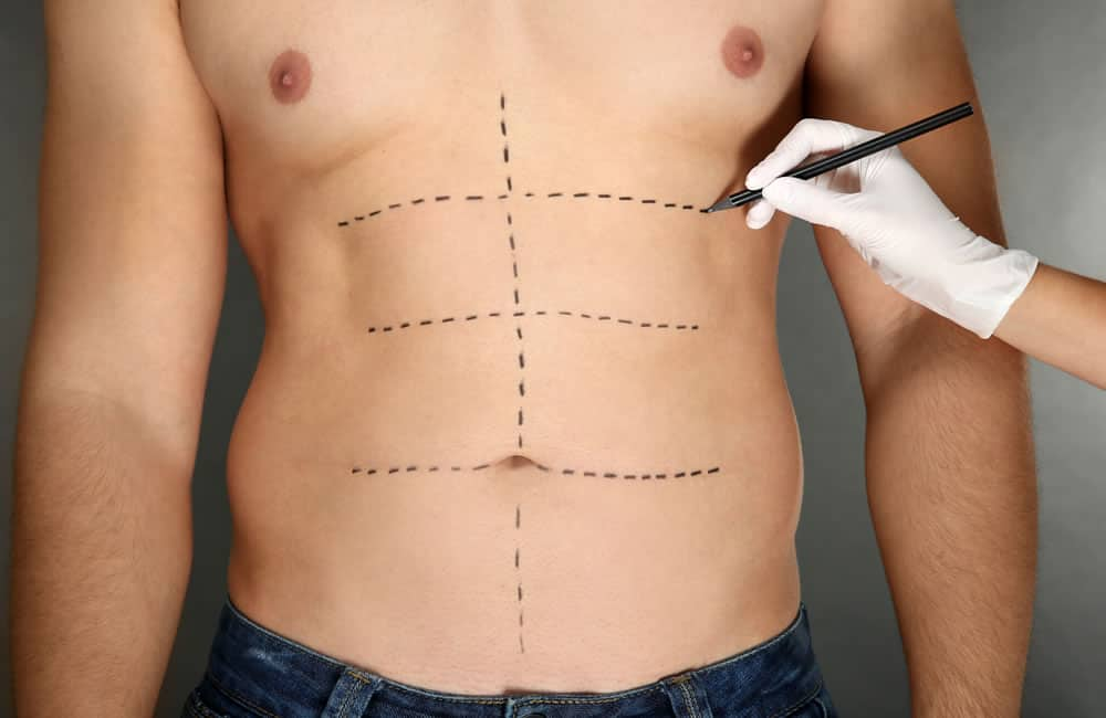 Man getting body cosmetic surgery